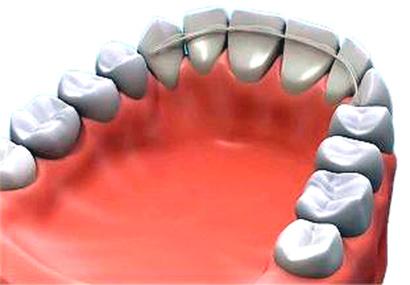 Ferula Dental Que Es Y Para Que Sirve Clinica Dental
